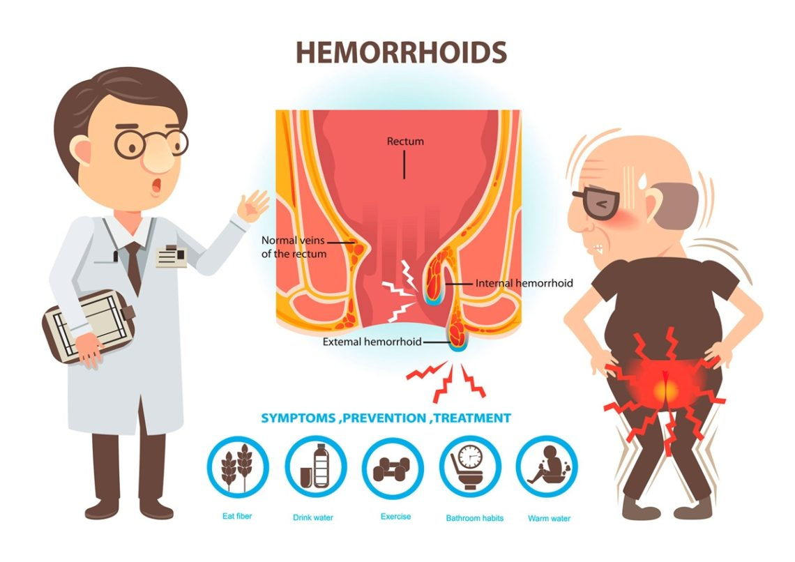 Hemorrhoids Prevention