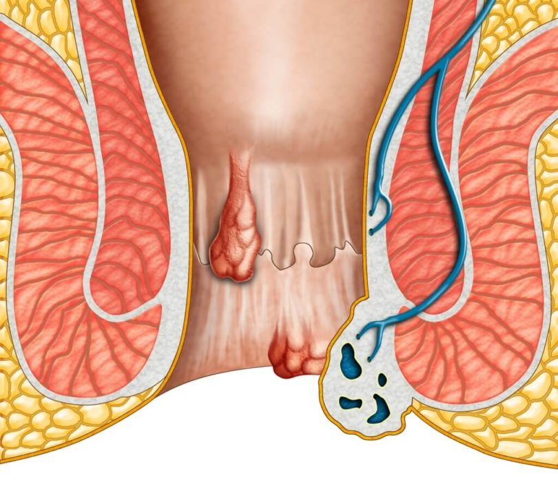 Hemorrhoids: Symptoms and Signs
