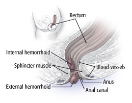 Anatomy of hemorrhoids