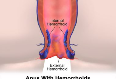 Hemorrhoids Diagnosis