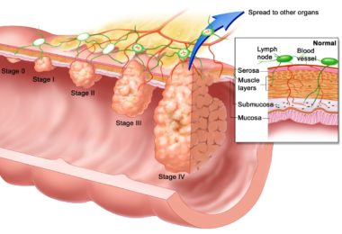 Anal Cancer: Symptoms, Causes and Treatments