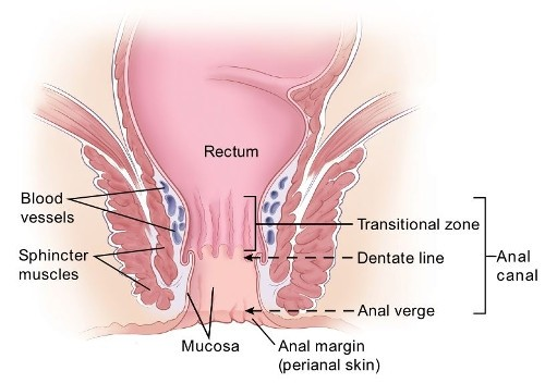 Treatments for Anal Cancer