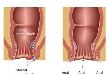 Anal Disorders (Anorectal Diseases)