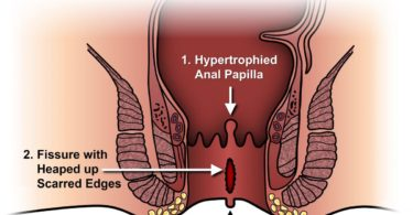 Anal Fissure: Symptoms, Causes, and Treatment