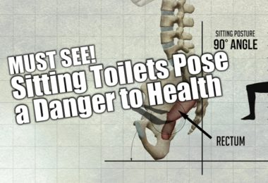 Hemorrhoids Defecation Postures
