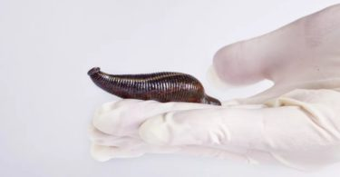 Hirudotherapy (Leech Therapy) for Hemorrhoids Treatment