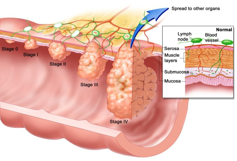 Hemorrhoids or Colon Cancer
