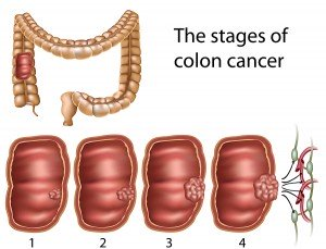 The stages of colon cancer