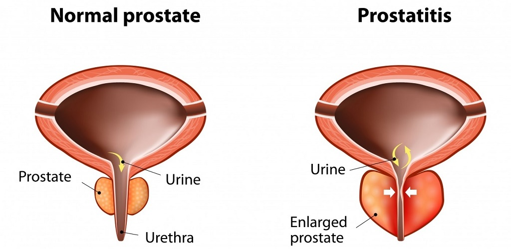 Hemorrhoids and Prostatitis (Prostate Problems)