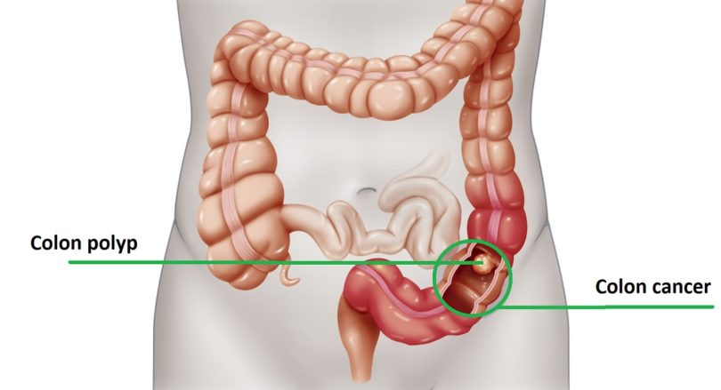 Colon Cancer Causes Symptoms And Treatment Health Care Qsota