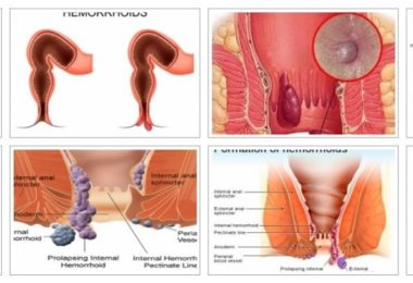Hemorrhoids: Images, Pictures and Photo