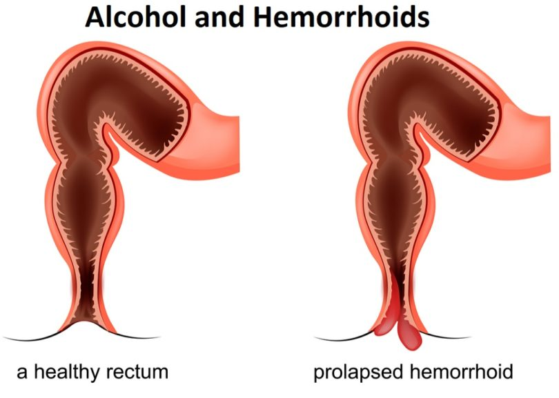 Alcohol and Hemorrhoids