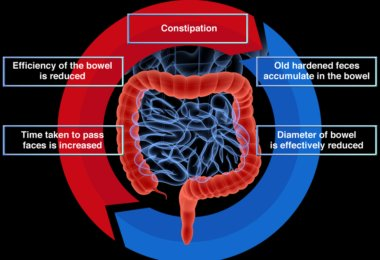 Preventing Constipation