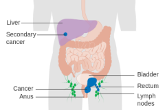 Stage 4 anal cancer